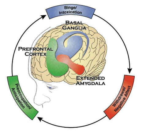 Image of the brain highlighting the basal ganglia, prefrontal cortex, and extended amygdala. Around the brain is a cycle explaining the the basal ganglia controls the need to binge, then the extended amygdala produces feelings of withdrawal and negative Affect, and finally the prefrontal cortex controls our feelings of preoccupation and anticipation